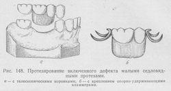 Що робити при відсутності зубного ряду