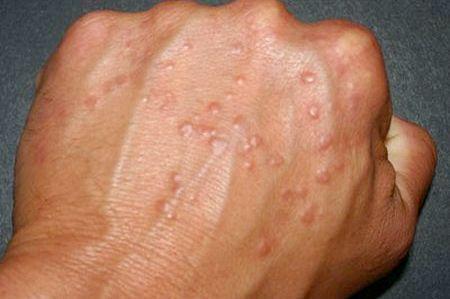 Ципко: як лікувати Ципко на руках, кращі рецепти