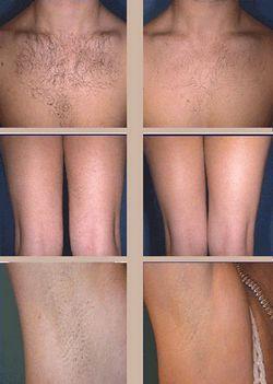 Елос епілятор - гладка шкіра в домашніх умовах
