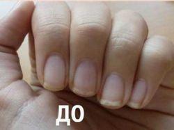 Якщо шаруються нігті