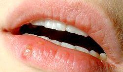 Герпес на губах - причини появи і методи лікування