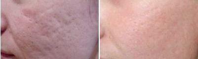 Як швидко прибрати шрами після фурункулів