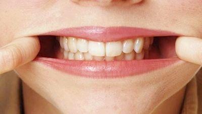 Як лікувати зубний флюс в домашніх умовах?