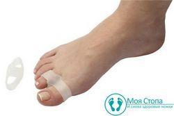 Корекція і профілактика «кісточки на нозі»
