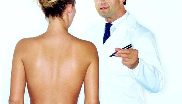 Ліпосакція - зворотна сторона швидкого схуднення