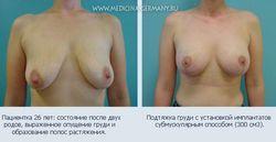 Пластична операція по збільшенню грудей