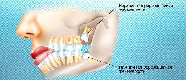 Чому болить зуб мудрості