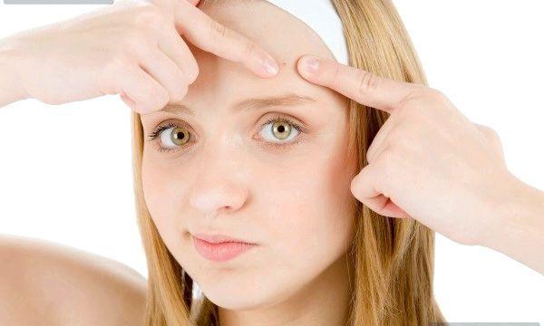 Чи допомагає зубна паста від прищів?