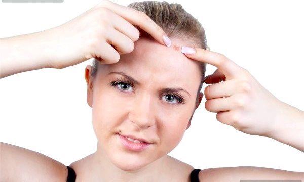 Прищі у волоссі: традиційне і народне лікування