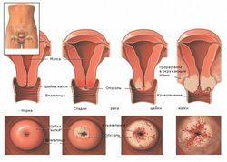 Рак яєчників і конизация шийки матки