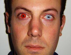 Різні види контактних лінз