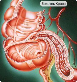 Симптоми і лікування хвороби крона