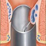Склерозування гемороїдальних вузлів