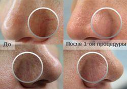 Судинна сітка судинні зірочки купероз на обличчі
