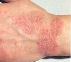 Види алергії на шкірі