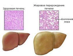 Жировий гепатоз: причини, симптоми, лікування, прогноз